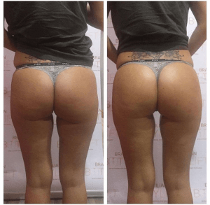 Toned buttocks courtesy of Brazilian Booty Lift